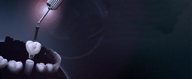 インプラントのイメージ